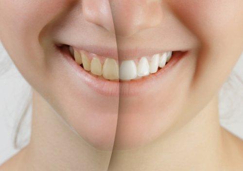 Teeth Whitening, Rochester, NY