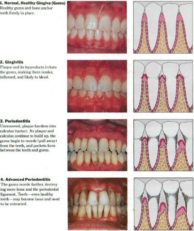 Gum Disease Treatment, Rochester, NY | Buhite & Buhite, DDS