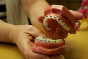 Mouth Model