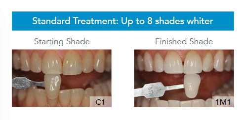 GLO Teeth Whitening Rochester, NY