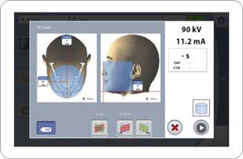 Planmeca ProMax® 3D Display