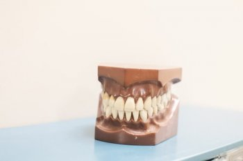 Picture of dentures sculpture.