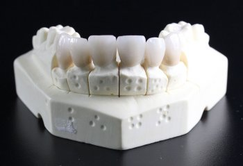 Lower Jaw Model