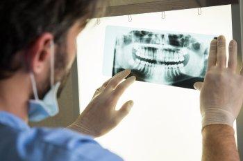 Dental Implants, Rochester, NY